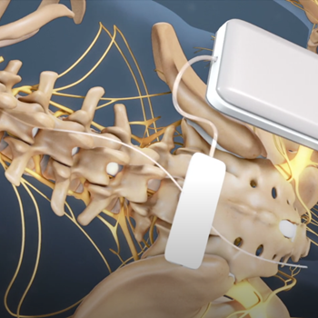 Spinal Cord Stimulation for Chronic Back Pain
